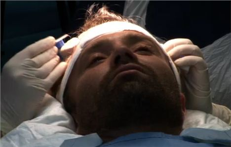Dr Farjo Performs Hair Transplant Live
