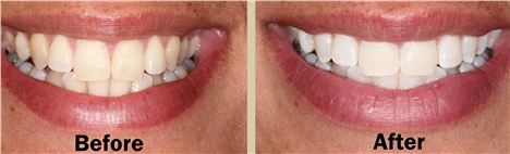 Lynda's teeth, before and after