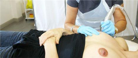 Nipple tattoo procedure
