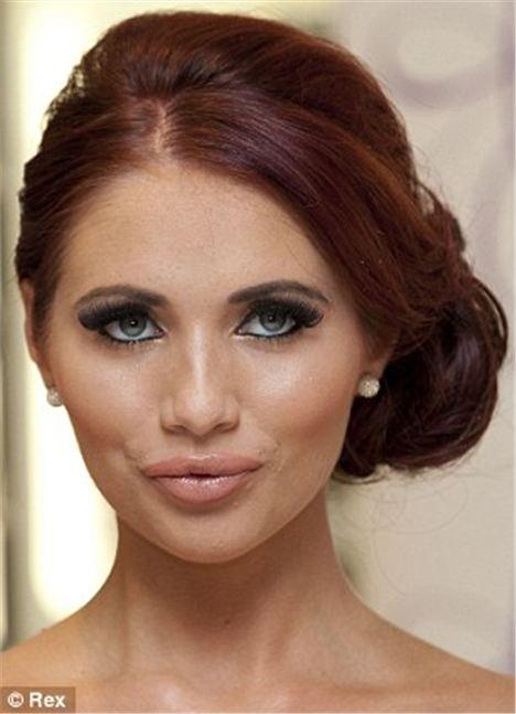 Botox In Your Twenties?
