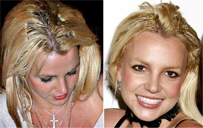 How Did Britney Spears Hair Grow Back So Fast